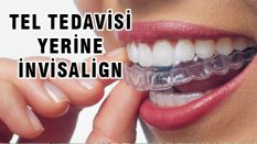 Diş Bozukluklarında Tel Tedavisi Ortadan Kalkıyor – İnvisalign