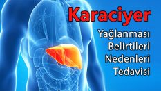 Karaciğer Yağlanması Nedir ?
