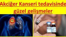 Akciğer kanseri tedavisinde gelişmeler