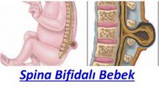 Spina Bifidalı Bebek