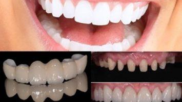 Doğal Zirkonyum Diş