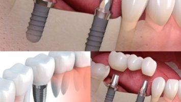 Yeni Nesil İmplant Diş
